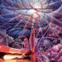 Thrombektomie bringt einen Benefit