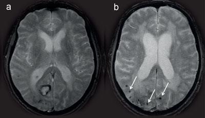 Abbildung 2: 73-jähriger Patient mit vorbekannter Gedächtnisstörung präsentiert sich mit einer akut einsetzenden Verwirrtheit und homonymen Gesichtsfeldeinschränkung links. In den T2*-gewichteten MRT-Sequenzen zeigen sich passend zur Klinik eine rezente lobäre Blutung occipital rechtshemisphäriell (a) sowie multiple kortikale/subkortikale Mikroblutungen (Pfeile) mit Aussparung der Stammganglien (b). Dieser neuroradiologische Befund ist verdächtig auf das Vorliegen einer zerebralen Amyloidangiopathie.
