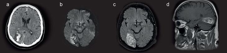 Abbildung 3: 68-jähriger Patient mit plötzlich aufgetretener homonymen Gesichtsfeldeinschränkung links und sich im Verlauf entwickelnde Kopfschmerzen rechts okzipital. In der CT (a) ist die Unterscheidung zwischen Ischämie oder Ödem um das Blutungsareal schwierig. Eine weiterführend veranlasste MRT mit unterschiedlichen Sequenzen (b: Diffusionsgewichtung, c: FLAIR-Sequenz, d: T1-Sequenz sagittal) bringt einen hämorrhagisch transformierten ischämischen Infarkt (occipital rechts A) zum Vorschein.