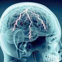 DFP: Update Kopfschmerz