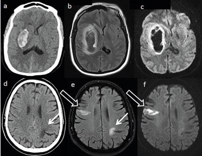 Akute intrazerebrale Blutung (a–c): Die CT (a) zeigt eine frische Blutung als hyperdense (helle) Läsion. Diese ist in der MRT (b: FLAIR, c: Diffusionswichtung) als dunkle Läsion zu erkennen. Akuter ischäm. Infarkt (d–f): Die CT zeigt nur einen alten Infarkt (d). Die MRT (e: FLAIR, f: Diffusionswichtung) zeigt auch den akuten Infarkt (offener Pfeil).